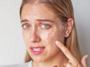 Вебинар: «Анти-акне терапия. Система профессионального косметического протокола Pro You Professional»
